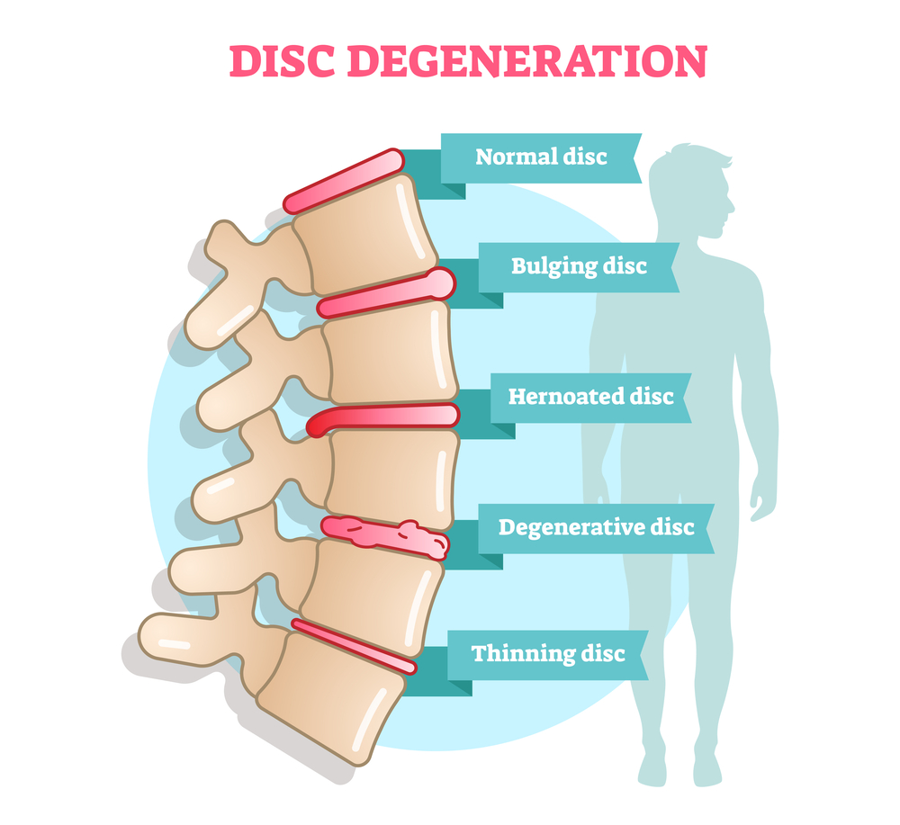 spinal degeneration causes spinal instability